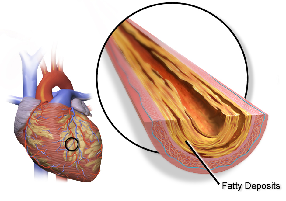 inflamed artery